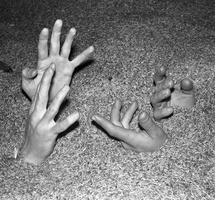 grud rankos